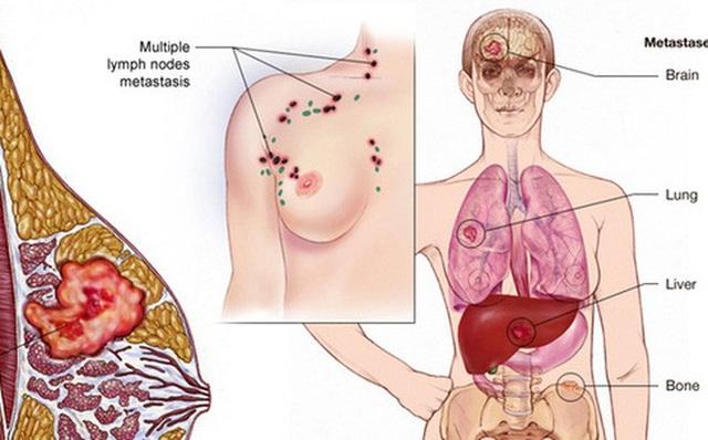 Phụ nữ trẻ cũng có thể mắc ung thư vú - Ảnh 2.
