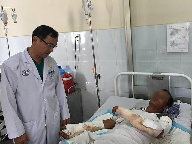 Anh Lê Hoàng D. đang điều trị tại khoa Phỏng-Tạo hình, BV Chợ Rẫy, TP.HCM. Ảnh: HL