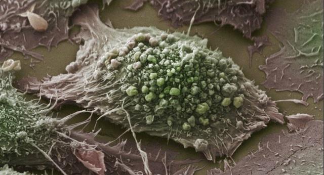 Các nhà khoa học nêu phương pháp mới chống ung thư - 1