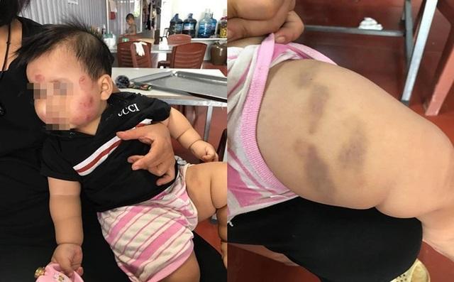 Cháu N.M bị nhiều vết bầm tím trên cơ thể sau khi từ lớp mầm non về. (Ảnh: FB gia đình)