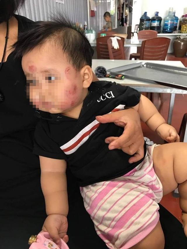 Cháu bé với nhiều vết bầm tím trên mặt sau khi gửi trẻ (Ảnh: fb gia đình).
