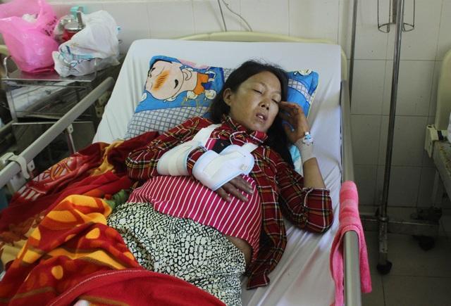 Chị Thu bị gãy tay đã 4 năm nhưng xương chưa liền, vừa qua tháo nẹp nay lại tiếp tục bị nhiễm trùng