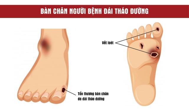 5 sai lầm khi chăm sóc bàn chân người tiểu đường mùa lạnh - 1