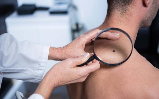 13 dấu hiệu ung thư nam giới không được bỏ qua - 5