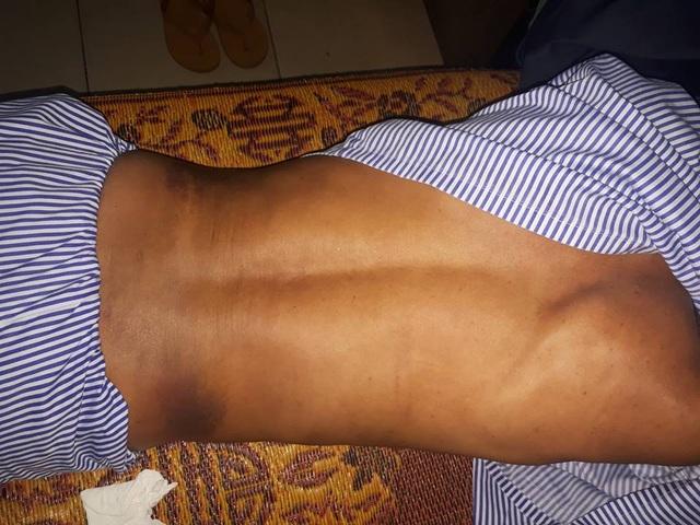 Gần 1 tuần điều trị, các vết bầm tím vẫn hiện rõ trên khắp cơ thể ông Toàn.