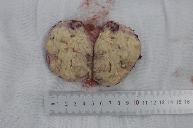 Khối u lớn được bóc tách từ cơ thể của sản phụ H sau quá khi sinh con.