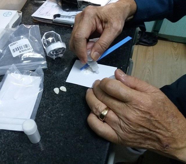 BS.CKII Trần Ngọc Đỉnh kiểm tra nguyên liệu gắn răng khểnh giả