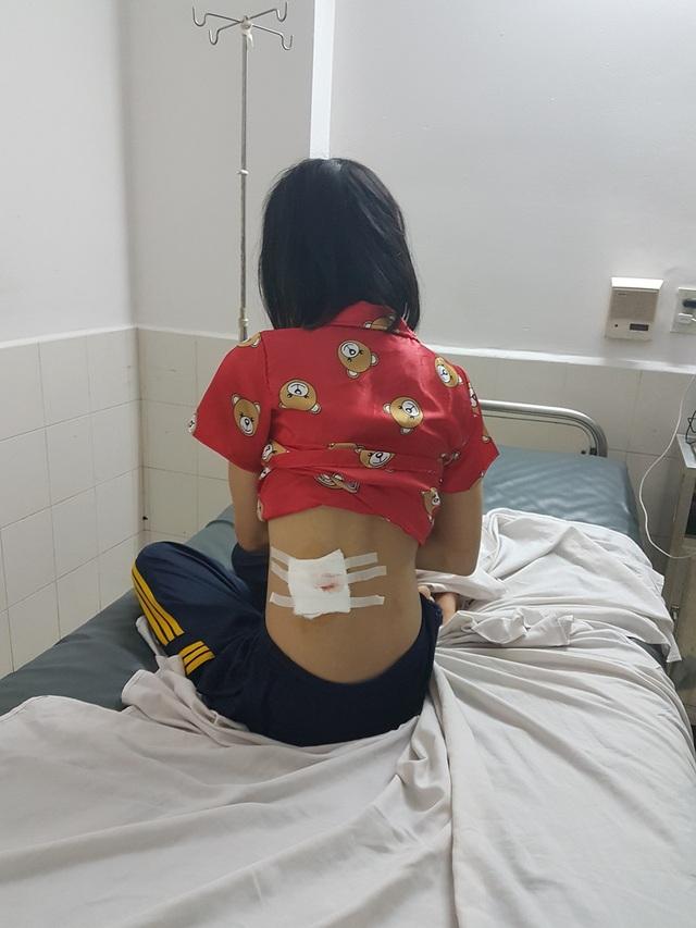 Chị Trần Thị Kim Thoa và vết thương trên lưng.
