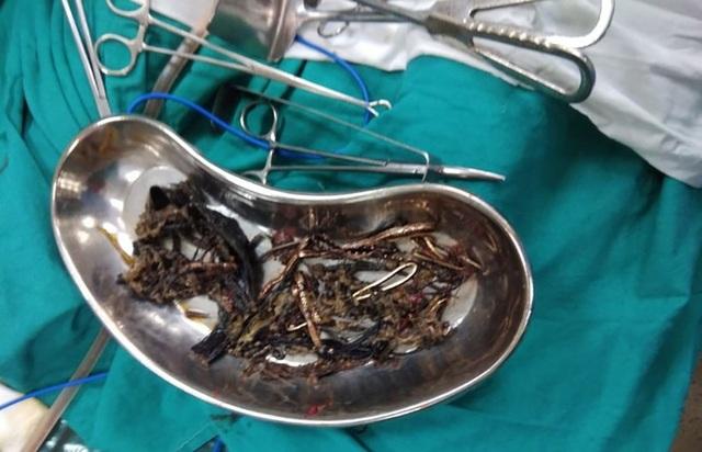 Rất nhiều kim loại gồm các vật sắc nhọn được tìm thấy trong dạ dày một người phụ nữ ở Ấn Độ khiến các bác sĩ chết lặng.