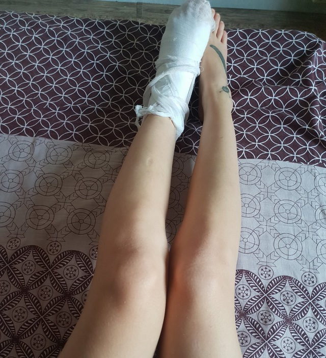 Hình ảnh một bên chân phải băng bó được cô gái chia sẻ lên mạng xã hội