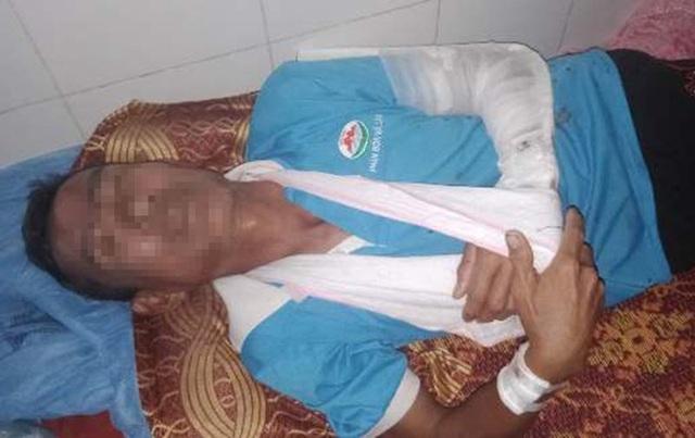 Ông Lộc đang được điều trị tại Bệnh viện Đa khoa huyện Đức Thọ.