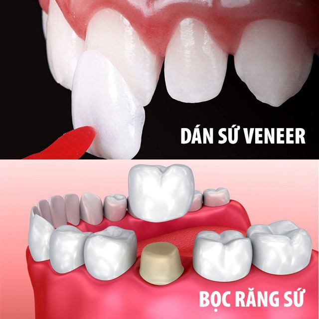 Image result for bọc răng sứ