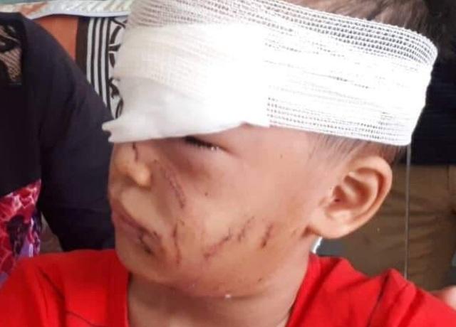 Cháu Đồng nhập viện trong tình trạng có nhiều vết thương vùng mặt, mũi, đầu và nguy hiểm nhất là tổn thương vùng hốc mắt, đứt ống tuyến lệ.