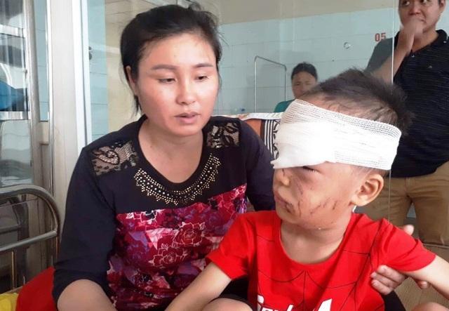 Cháu Đồng đang được điều trị tại Bệnh viện Nhi Thanh Hóa.