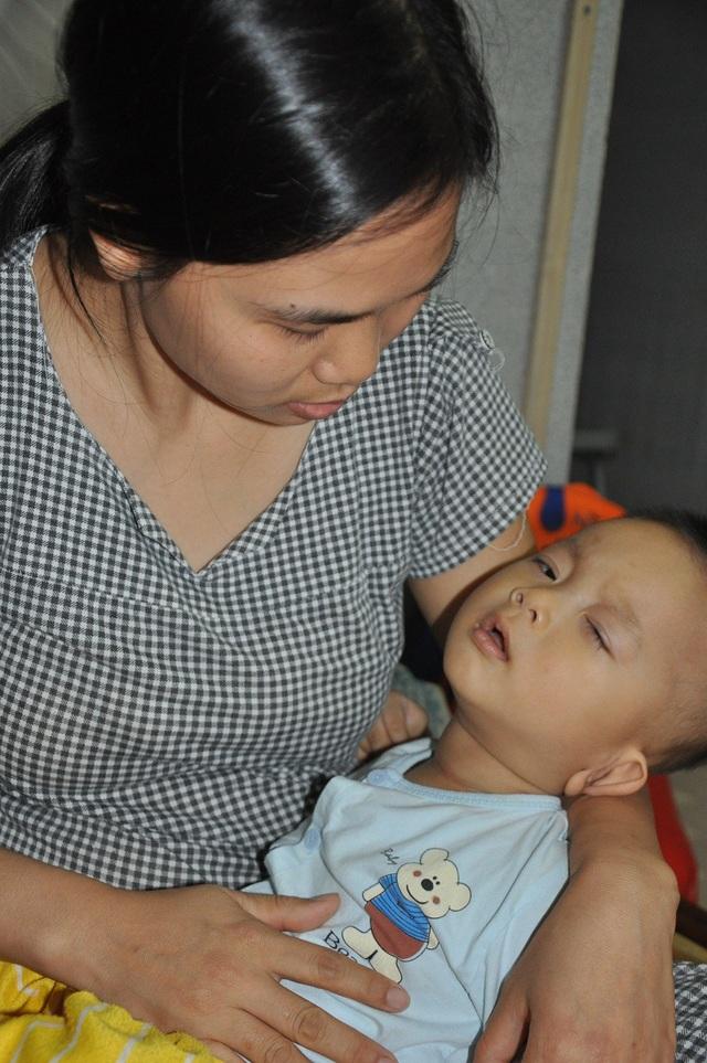 Bé Long Nhật (1 tuổi) phải theo điều trị thường xuyên để mong cải thiện tình hình.