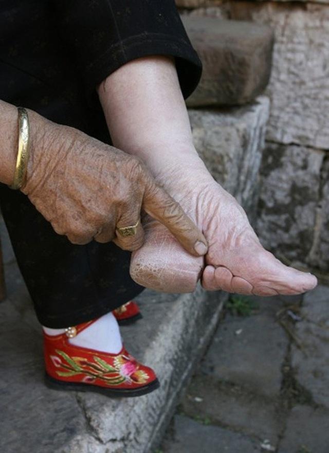 Đôi chân bị bó đến biến dạng
