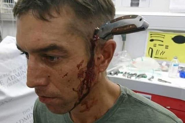 Shaun cực kỳ bình tĩnh dù bị dao đâm