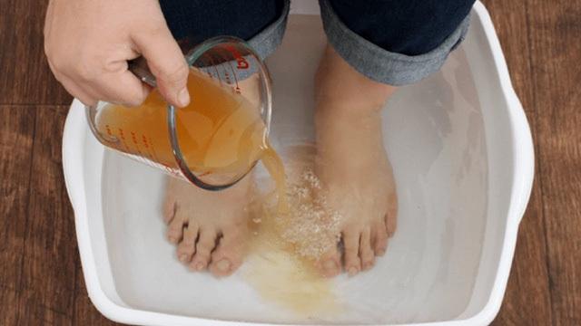Những lợi ích khi ngâm chân trong giấm - 1