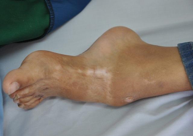 Chân của Tuấn bị gãy từ ngày nhỏ.