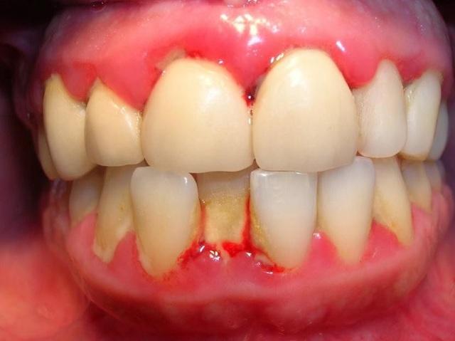 Viêm nha chu là một trong những nguyên nhân phổ biến gây hôi miệng
