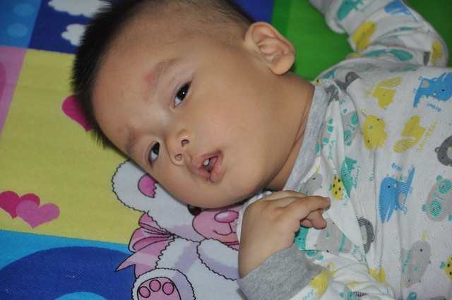 Cậu bé Long Nhật đang được điều trị ở bệnh viện Nhi TW.