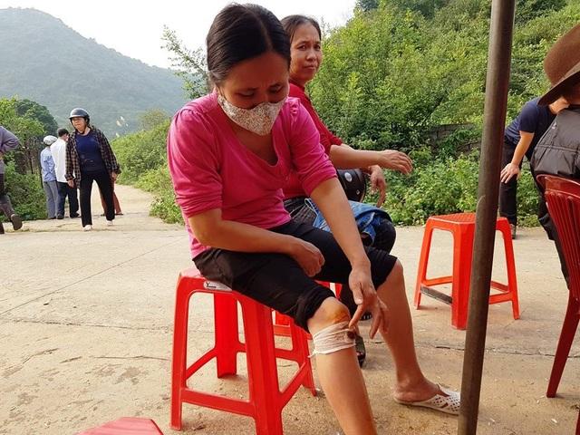 Chị Vân bị thương sau khi bị nhóm vệ sĩ do Công ty TNHH Việt Đức thuê đến xô ngã.