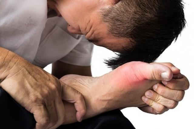 Gút gây đau đớn cho người bệnh