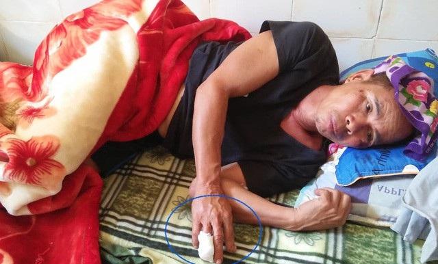 Ông Nhân được đưa đến cấp cứu tại Trung tâm Y tế huyện Quế Phong.