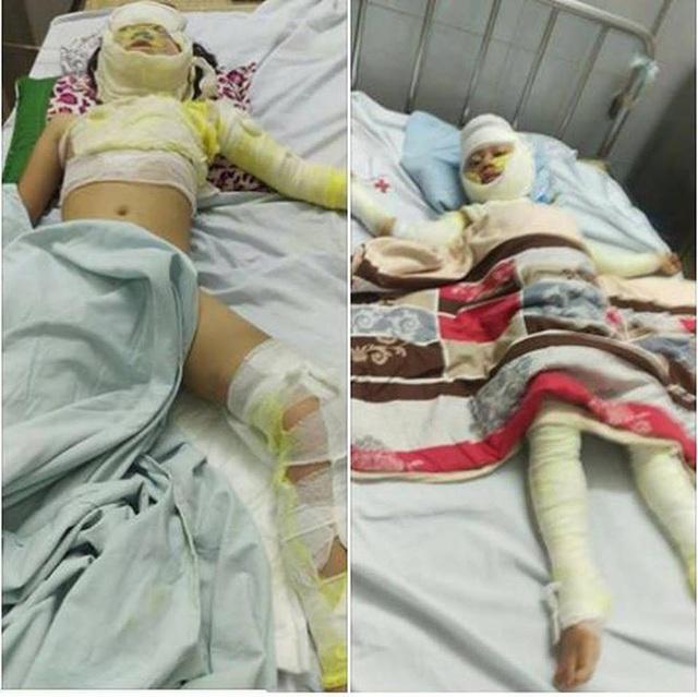 Do bị bỏng nặng, các nạn nhận đang được đội ngũ y bác sỹ chăm sóc, theo dõi tại bệnh viện.