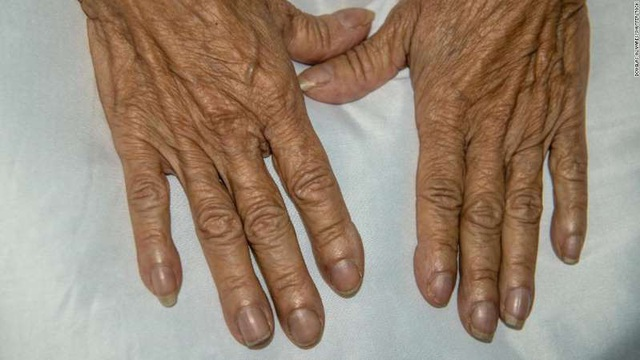 Ngón tay dùi trống trên một bệnh nhân nữ