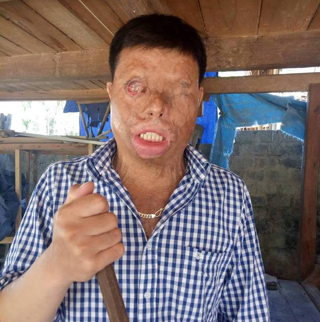 Trong lúc đi chở hàng thuê, Khuyên đã bị người ta hắt cả ca axit nhầm vào mặt mình.