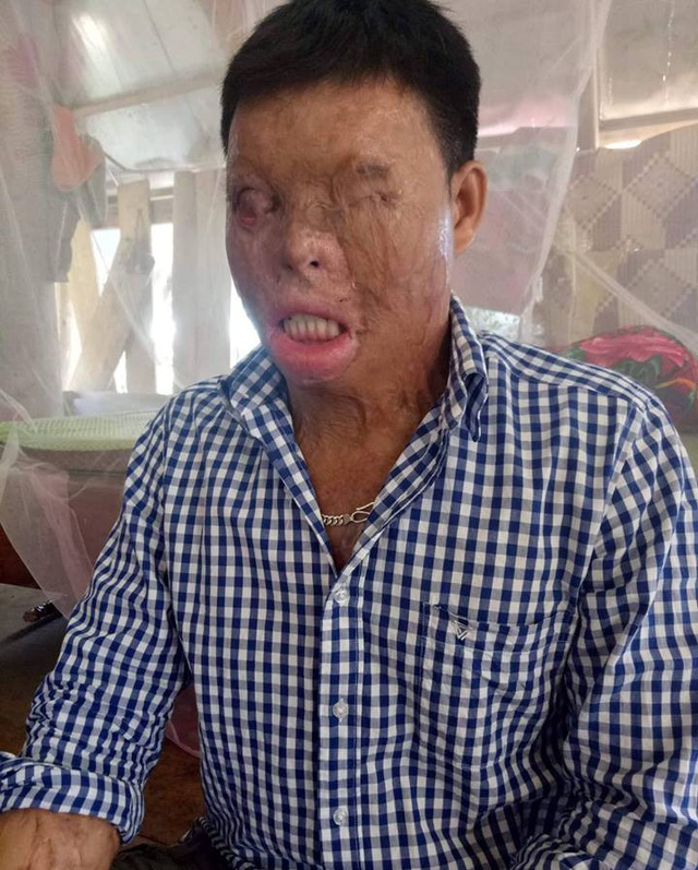 Cuộc sống khốn khổ của chàng trai có khuôn mặt biến dạng vì bị tạt axit nhầm - 1