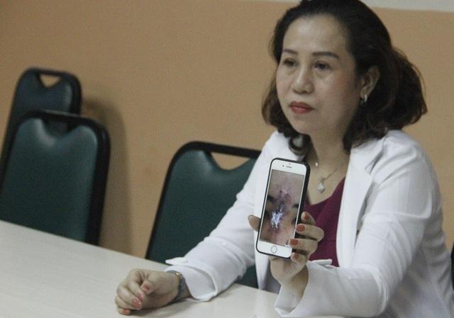 Bác sĩ xót xa trước hình ảnh gương mặt hoại tử, biến dạng của nữ sinh viên