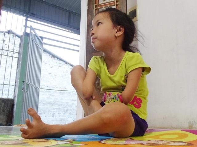 Nguyễn Như Linh sinh ra đã kém may mắn hơn so với các bạn cùng trang lứa