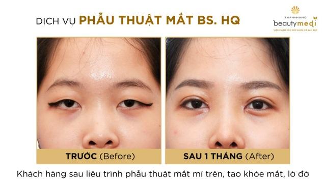 Càng gần cuối năm càng cần cẩn trọng với các dịch vụ phẫu thuật thẩm mỹ mắt giá rẻ - 4