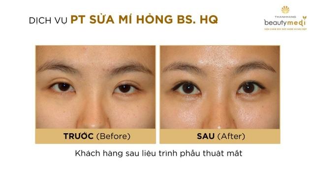 Một số hình ảnh của khách hàng sau khi Phẫu thuật mắt với Bác sĩ Hàn Quốc tại Beauty Medi