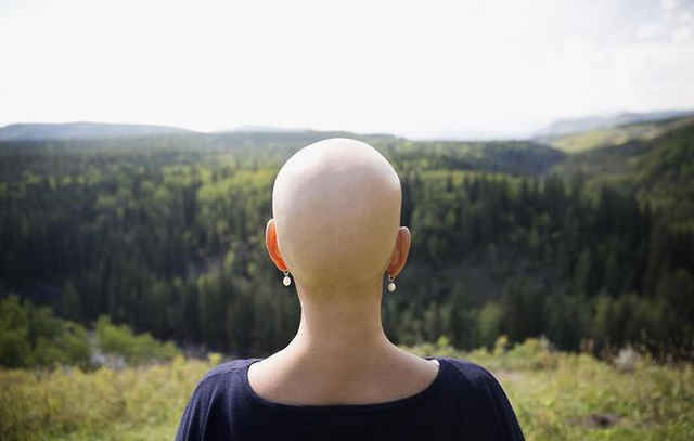 """Đừng nghĩ ung thư là """"bản án tử hình"""" - 1"""