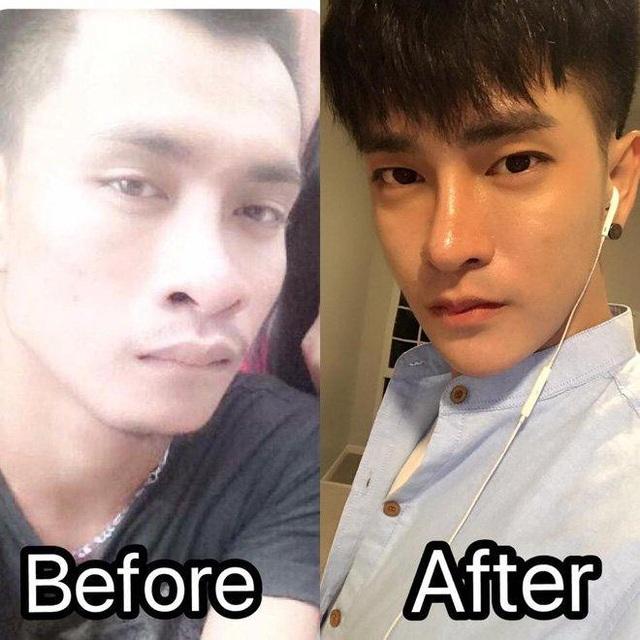 Prasit trước và sau khi phẫu thuật