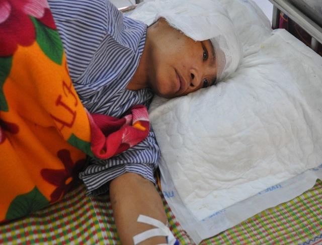 Bị tai nạn giao thông khiến chị Hương lâm vào tình cảnh nguy kịch.