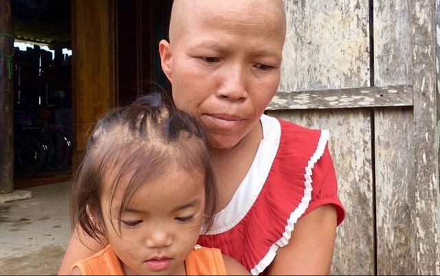 Bố bướu ác tính, mẹ ung thư, 3 đứa con thơ mù mịt tương lai - 2