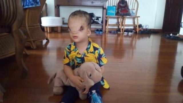 Hiện Hoàng Dung đang được xuất viện để điều trị ngoại trú.