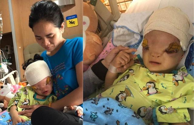 Cô bé 3 tuổi vừa trải qua ca phẫu thuật thành công, bước khởi đầu cho hành trình tìm lại khuôn mặt của em.