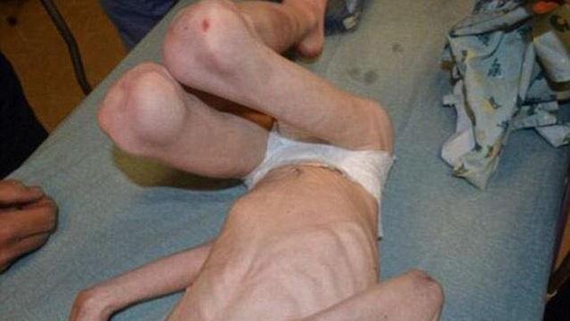 Cậu bé Jordan tại thời điểm được cảnh sát tìm thấy và giải cứu, chỉ còn da bọc xương.