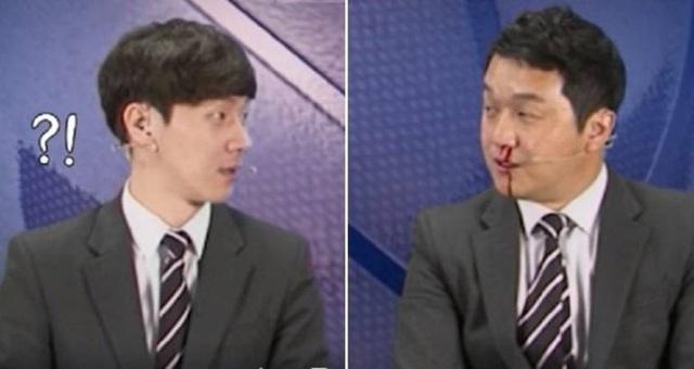 Người đồng hành cũng phải giật mình khi nhìn thấy khuôn mặt Jo Hyun-il