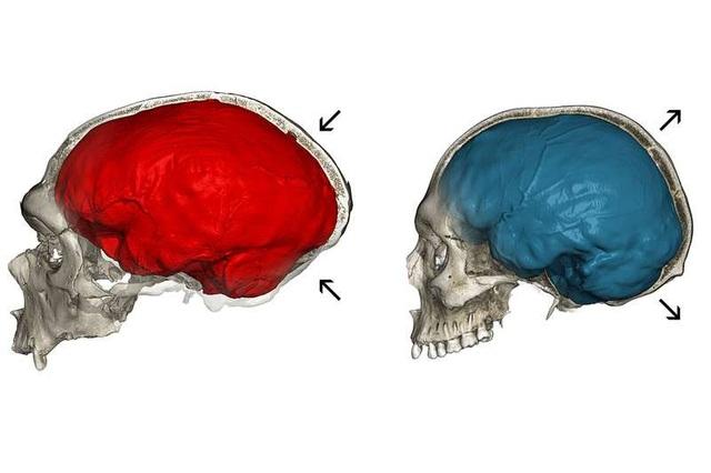 Những người đầu hơi bẹp là do gen di truyền của người Neanderthal - Ảnh 2.