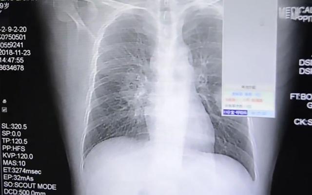Phổi của bệnh nhân tên Peng bị nhiễm nấm phổi.