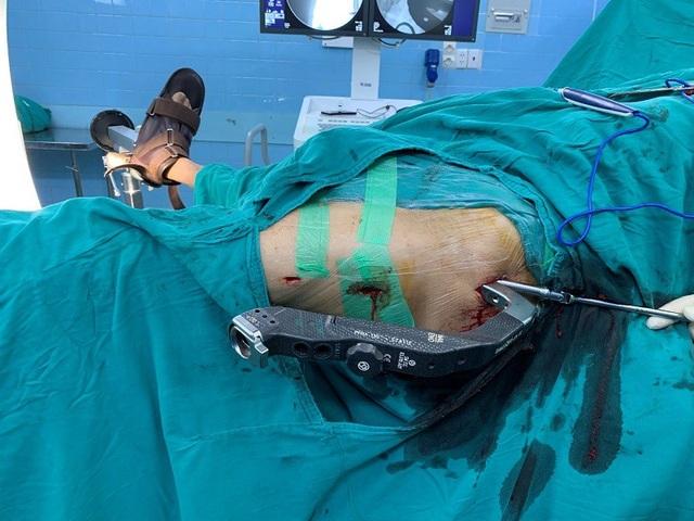 Sau 50 phút phẫu thuật, bác sĩ đã cố định ổ gãy, bắt vít vào cố định xương cho cụ bà