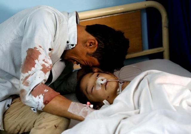 Một người đàn ông bật khóc bên cạnh một cô gái bị thương tại bệnh viện sau vụ tấn công liều chết ở Kabul, Afghanistan ngày 22/4.