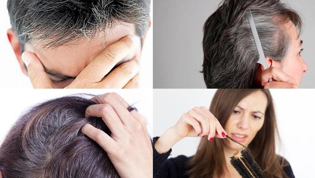 Tóc bạc, tóc rụng, lão hóa sớm có phải là vấn đề của bạn?