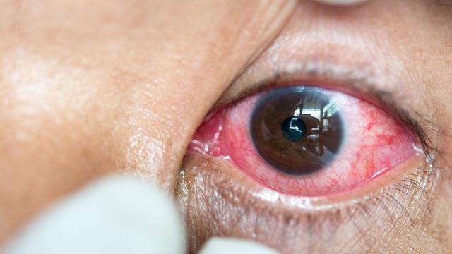Nguy cơ nhiễm trùng mắt nghiêm trọng từ kính áp tròng  - Ảnh 1.